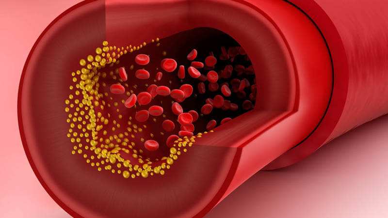 استفد من هذه النصائح الغذائية لخفض الكوليسترول الضار في الدم
